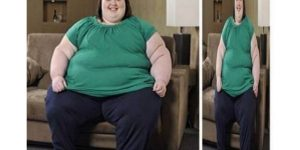 Funny Before and After Weight Loss Picture